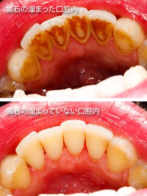 歯周病の原因とその治療